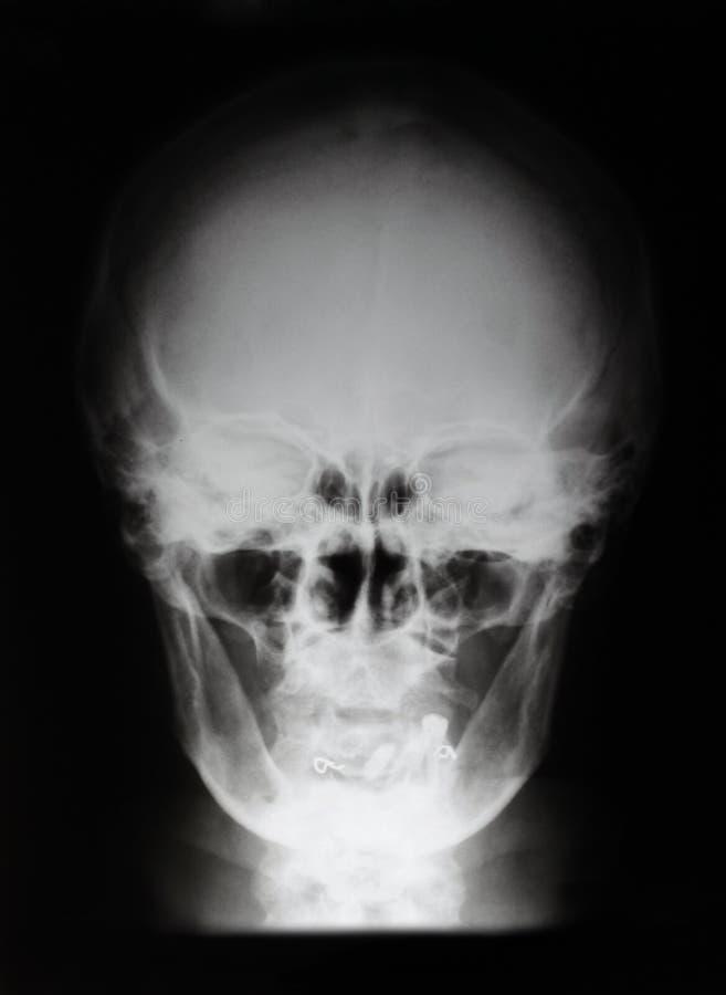 Cráneo de la radiografía imagenes de archivo