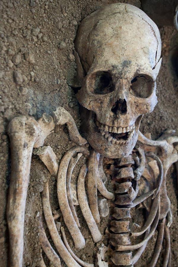 Cráneo Humano Con El Fondo Oscuro Concepto De Muerte, De Horror Y De ...