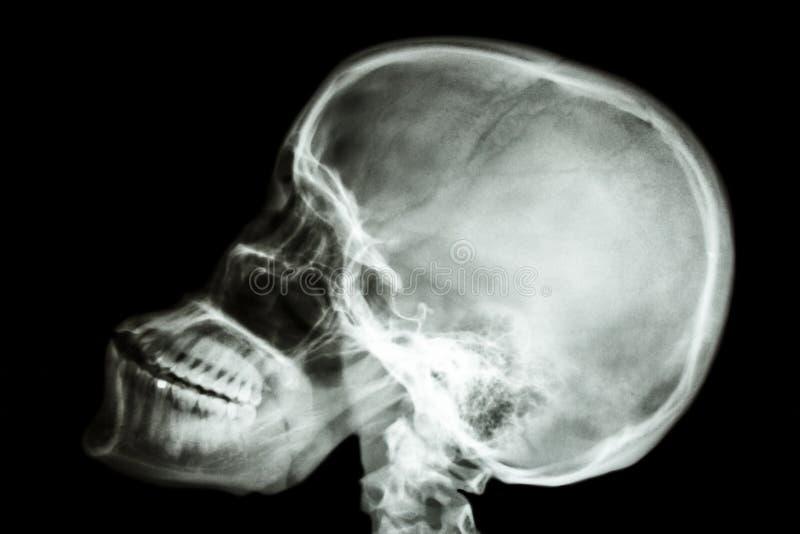 Cráneo normal de los seres humanos y espina dorsal cervical fotografía de archivo