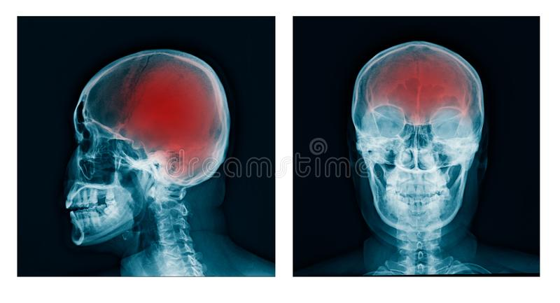 Crâne de rayon X photos stock