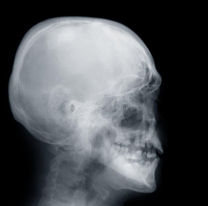Crâne de rayon X image libre de droits