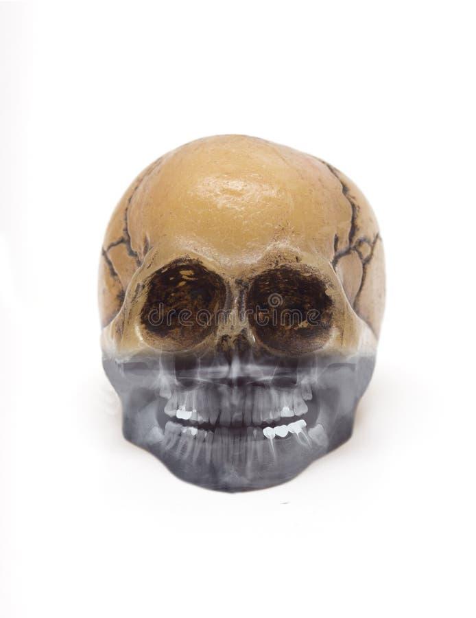 Crâne et rayon X images libres de droits