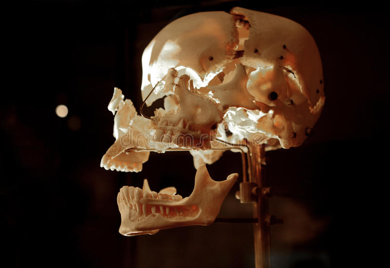 Download Crâne humain image stock. Image du squelette, préhistorique - 87703105