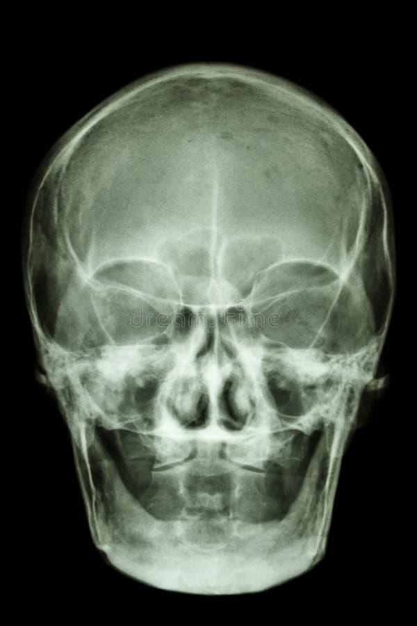 Crânio asiático envelhecido velho normal (povos tailandeses) fotos de stock royalty free