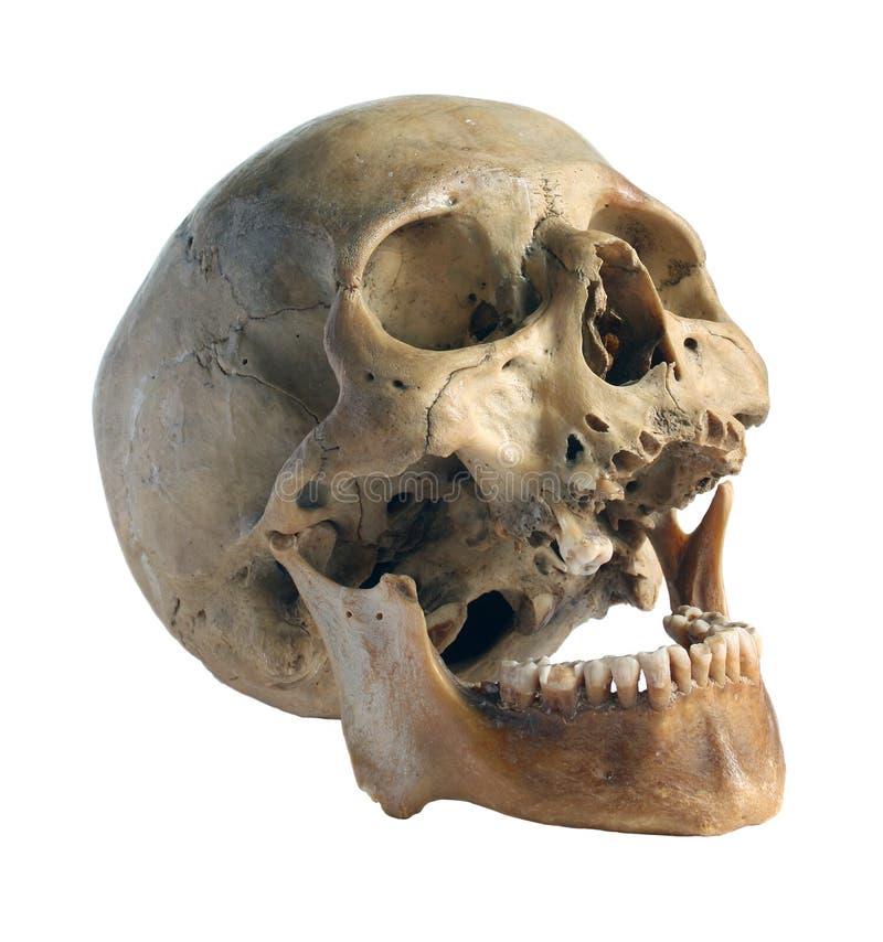 Crânio do close-up da pessoa. imagens de stock