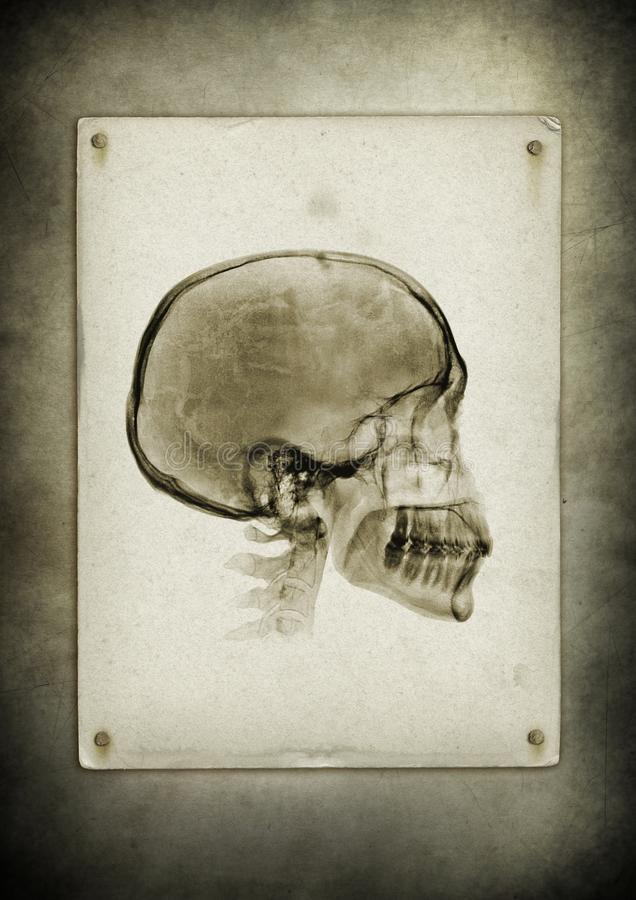 Crânio do raio X em um fundo do papel do vintage foto de stock
