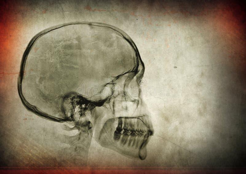 Cr?nio do raio X em um fundo textured escuro ilustração stock
