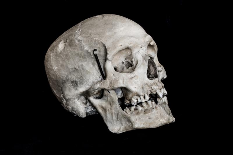 Crânio humano real no fundo preto imagem de stock royalty free