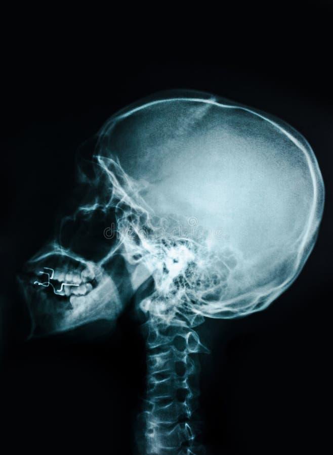 Cr?ne de rayon X de film photos libres de droits