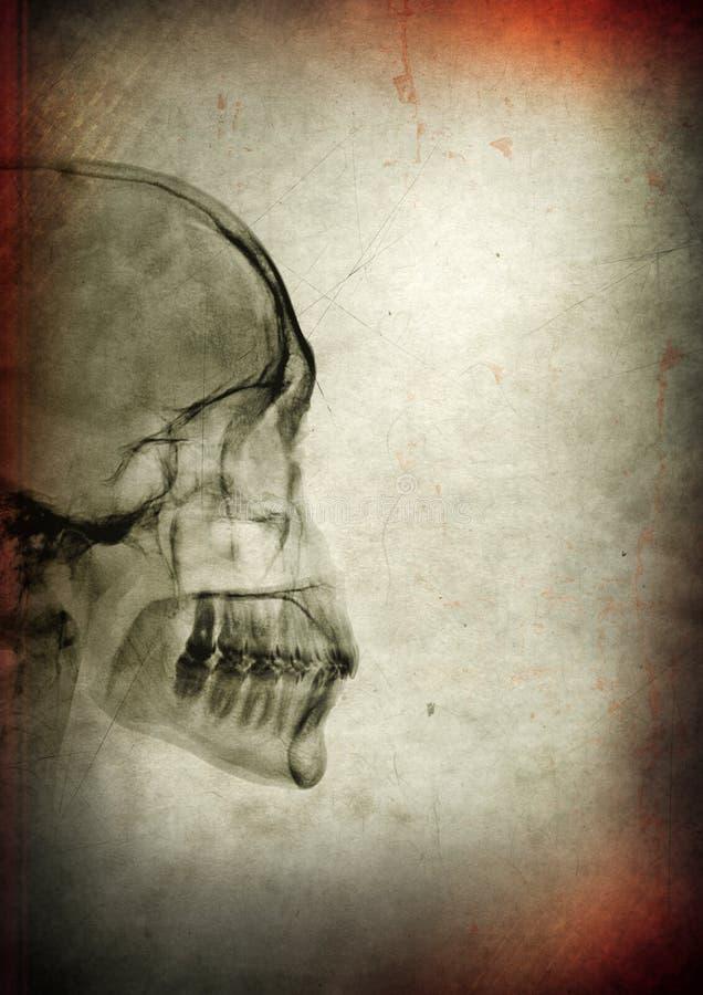 Cr?nio do raio X em um fundo textured escuro imagem de stock