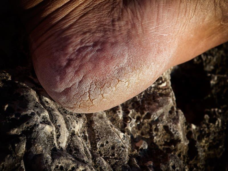 Cracked Heel Stock Photo