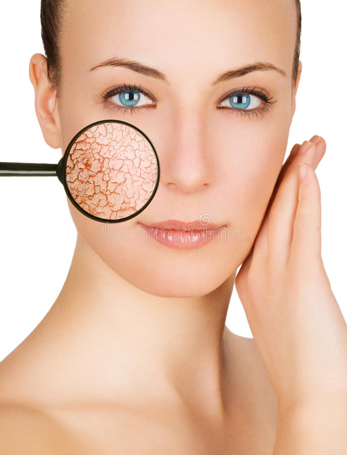 Free Cracked Skin Royalty Free Stock Photography - 18902887