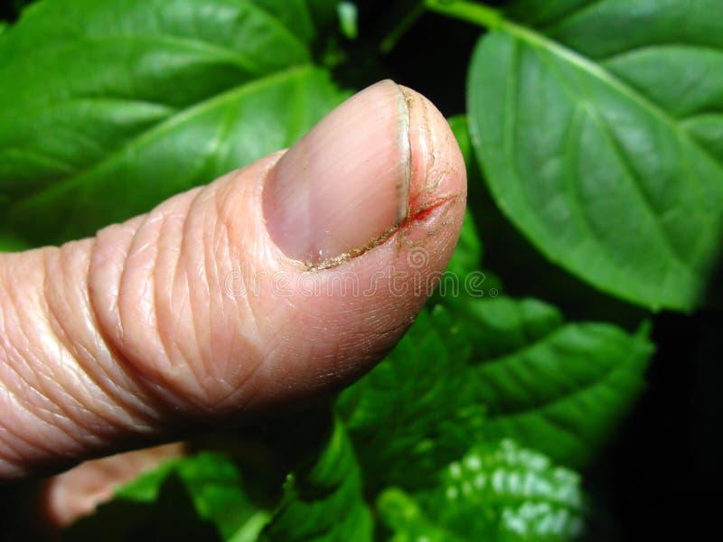 Cracked skin. Of finger, near the nail stock photo