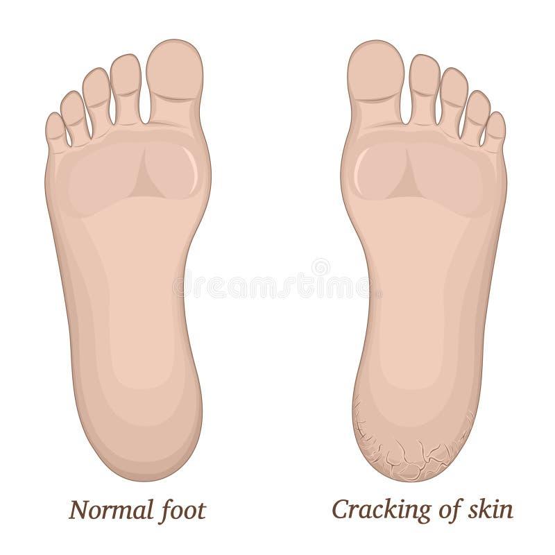 Cracks in the heel. Illustration of healthy feet and feet with cracks on the heel stock illustration