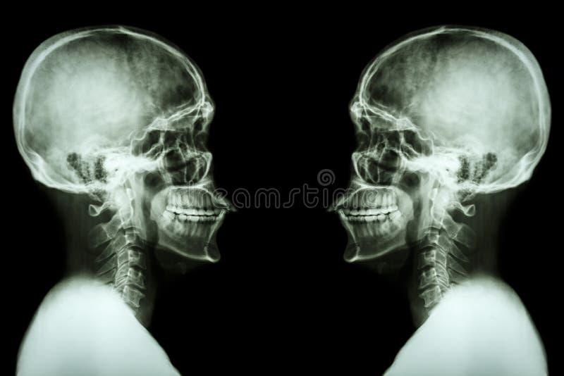 Cranio dei raggi x e spina dorsale cervicale fotografia stock