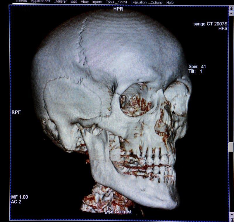 Cranio, ricostruzione di CT-ricerca, anatomia fotografia stock