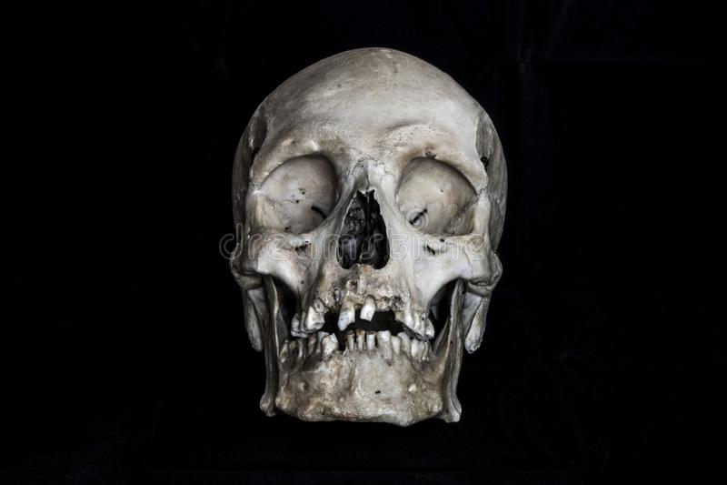 Cranio umano su priorit? bassa nera fotografia stock