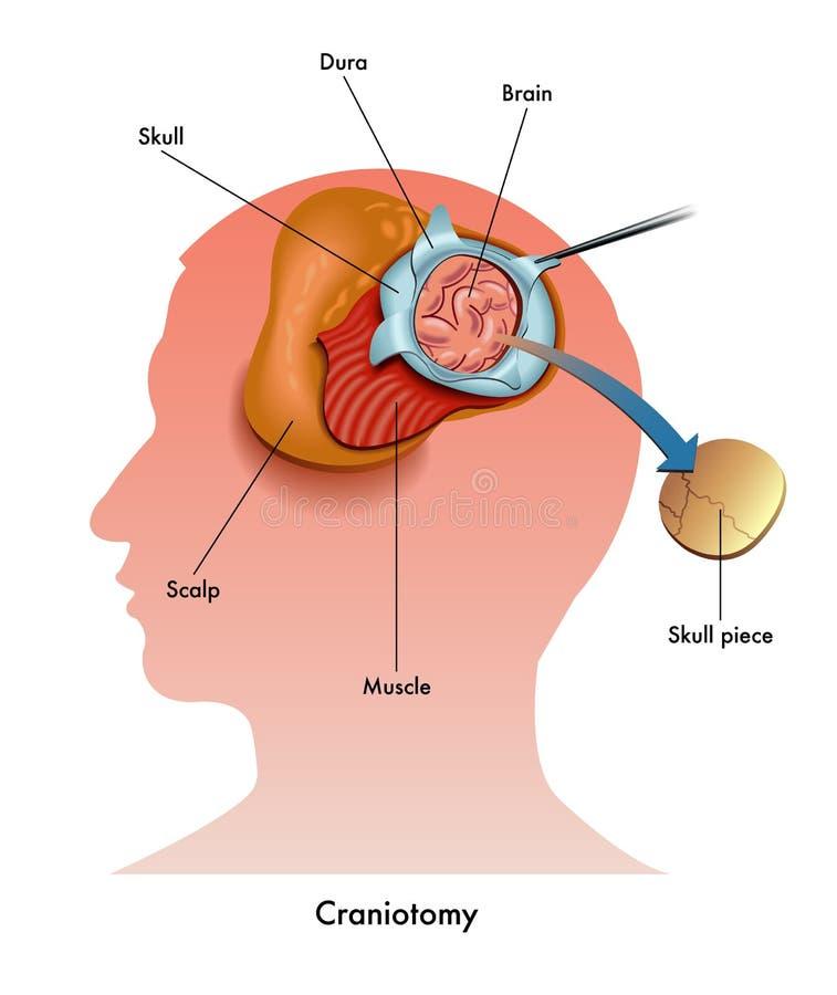 Craniotomy иллюстрация вектора