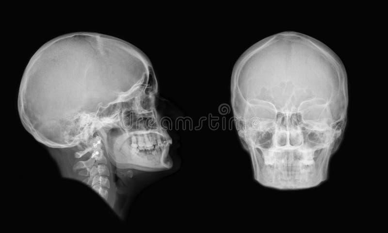 cranium stock afbeelding