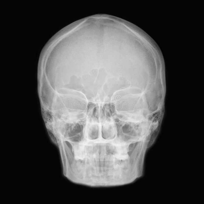 cranium royalty-vrije stock afbeeldingen