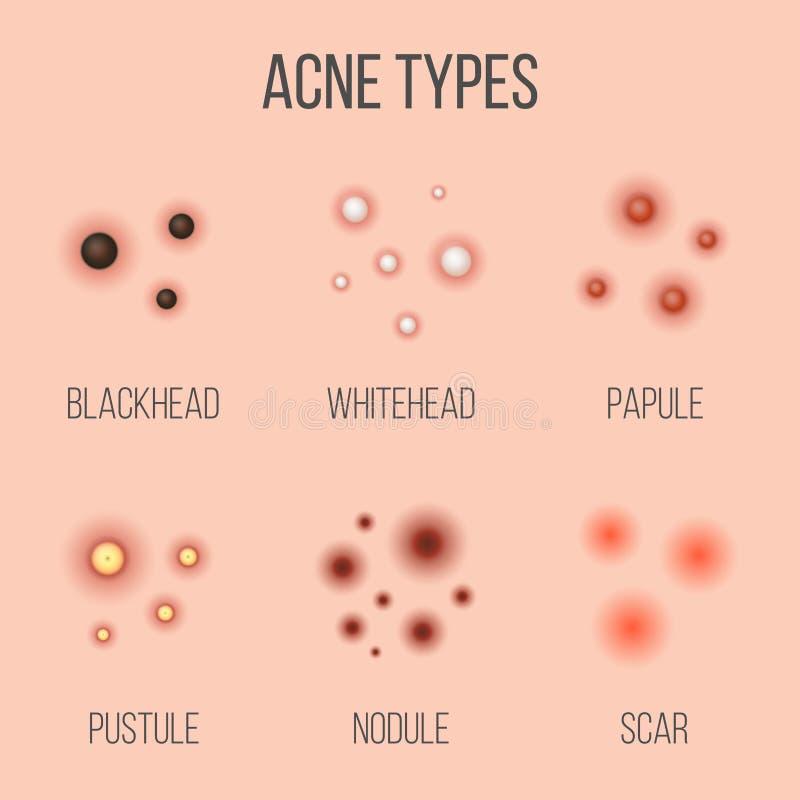 Creatieve vectorillustratietypes van acne, pukkels, huidporiën, meeëter, whitehead, litteken, comedone, stadiadiagram vector illustratie