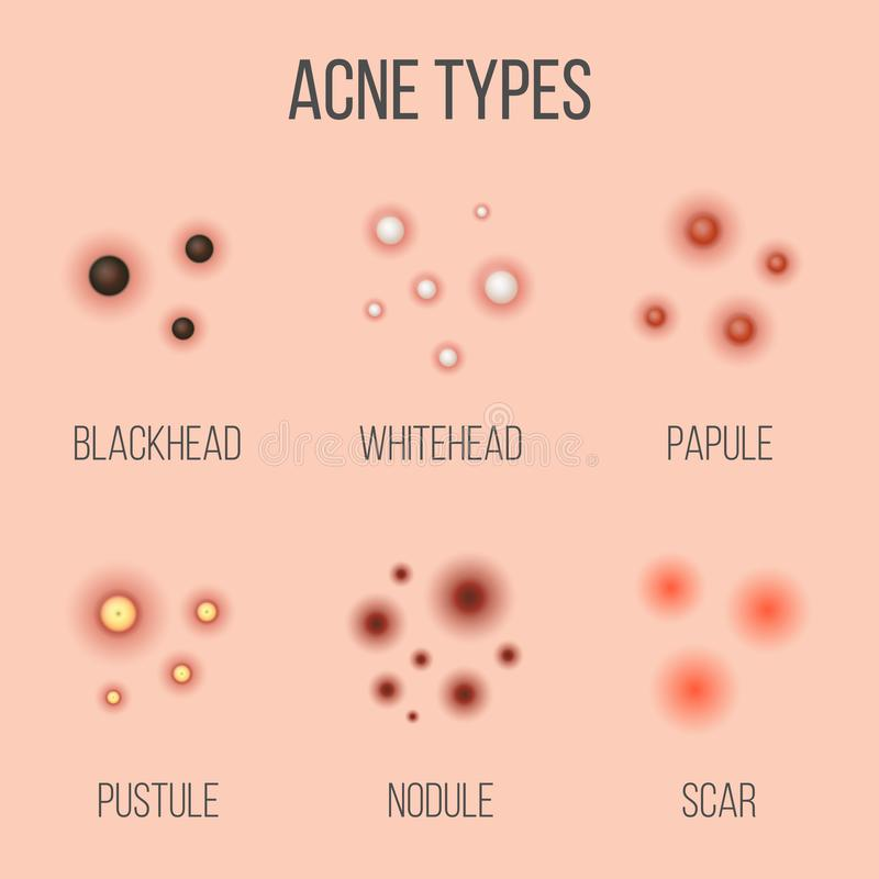 Creative vector illustration types of acne, pimples, skin pores, blackhead, whitehead, scar, comedone, stages diagram. Isolated on transparent background. Art vector illustration