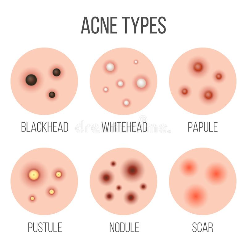Creative vector illustration types of acne, pimples, skin pores, blackhead, whitehead, scar, comedone, stages diagram royalty free illustration