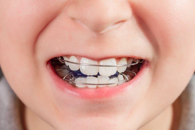 Criança com dispositivo ortodôntico imagens de stock