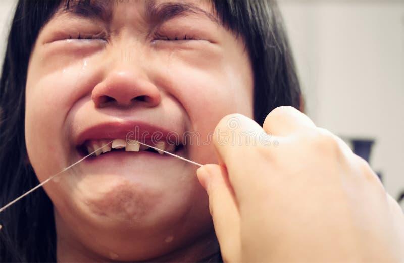 A criança grita enquanto um adulto tenta extrair um dente de bebê da perda com imagem de stock royalty free