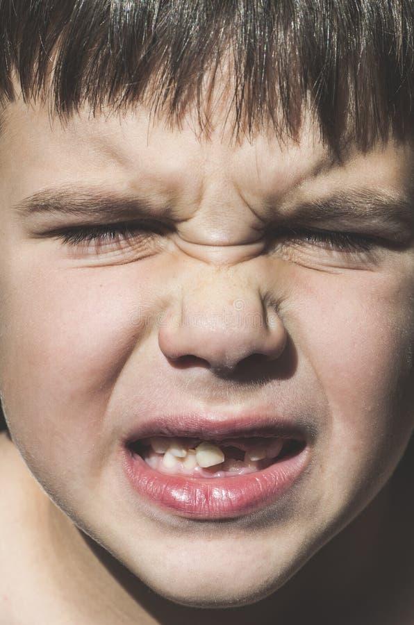 A criança mostra os dentes faltantes imagem de stock