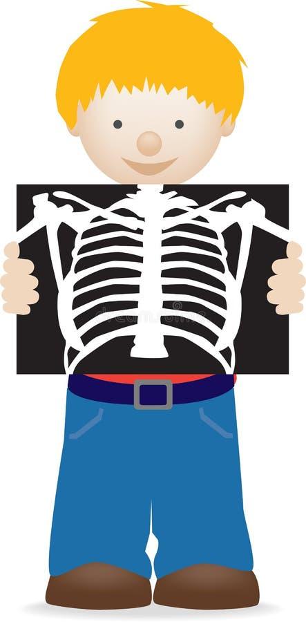 Criança que prende um raio X ilustração royalty free