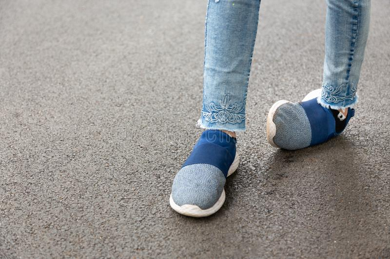 Crippled,woman disabled,people with disabilities or accident ankle sprain while jogging,run in outdoor park,feel pain,foot asian stock photos