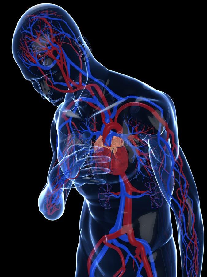 Crise cardiaque illustration libre de droits