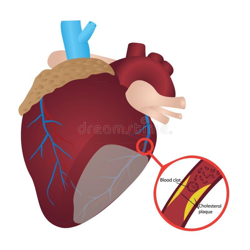 Crise cardiaque de la plaque I de cholestérol de caillot sanguin illustration stock