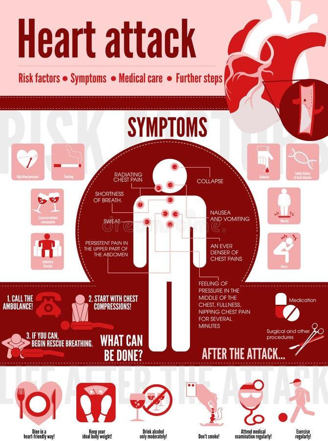 Crise cardiaque infographic illustration libre de droits