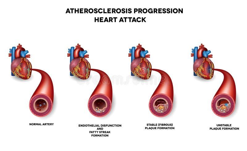 Crise cardiaque, maladie de l'artère coronaire illustration stock