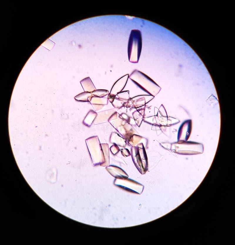 cristales de acido urico en orina perros