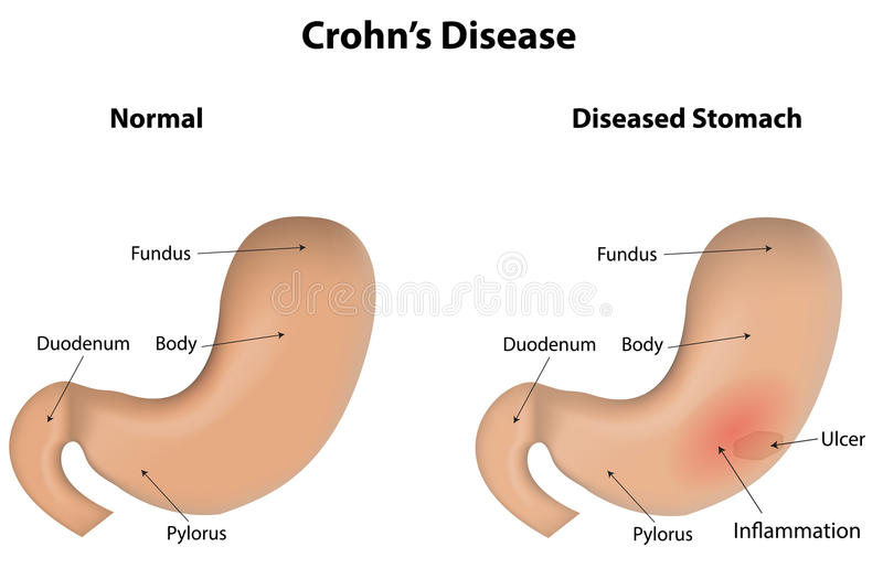 Crohn ασθένεια διανυσματική απεικόνιση