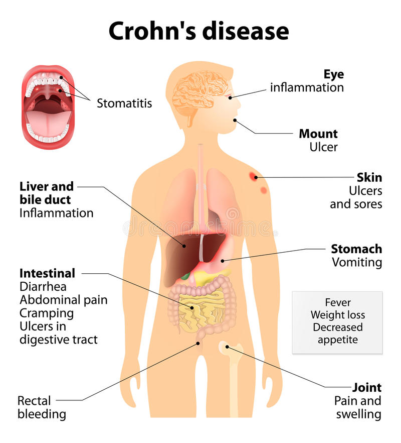 Crohn choroba lub Crohn syndrom ilustracja wektor