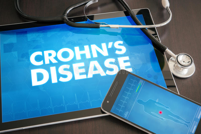 Crohn choroby diagnozy med (gastrointestinal choroba odnosić sie) royalty ilustracja