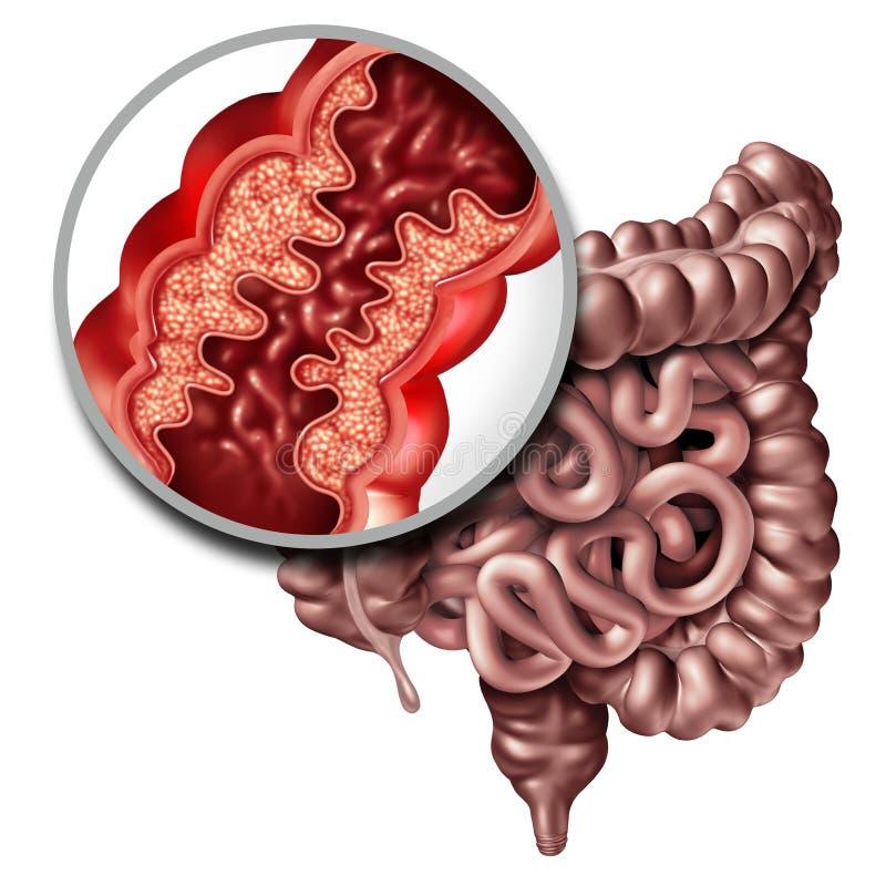 Crohn Ziekte Medische Ziekte royalty-vrije illustratie