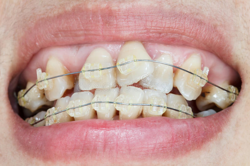 Crooked teeth with braces. royalty free stock photo