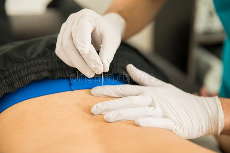Physiotherapist Doing Dry Puncture On Back Of Male Patient royalty free stock photos