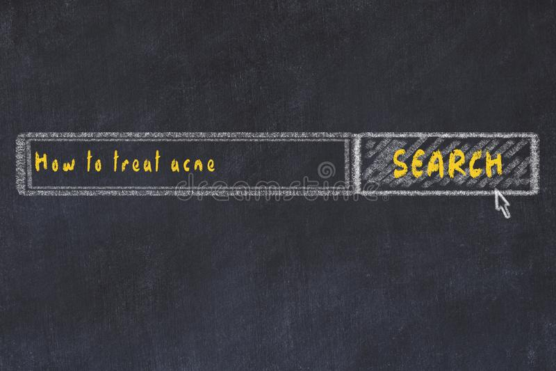 Croquis de panneau de craie de moteur de recherche d'Internet Recherchant comment traiter l'acné illustration de vecteur