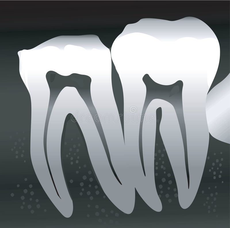 Cross sections of Tooth royalty free illustration