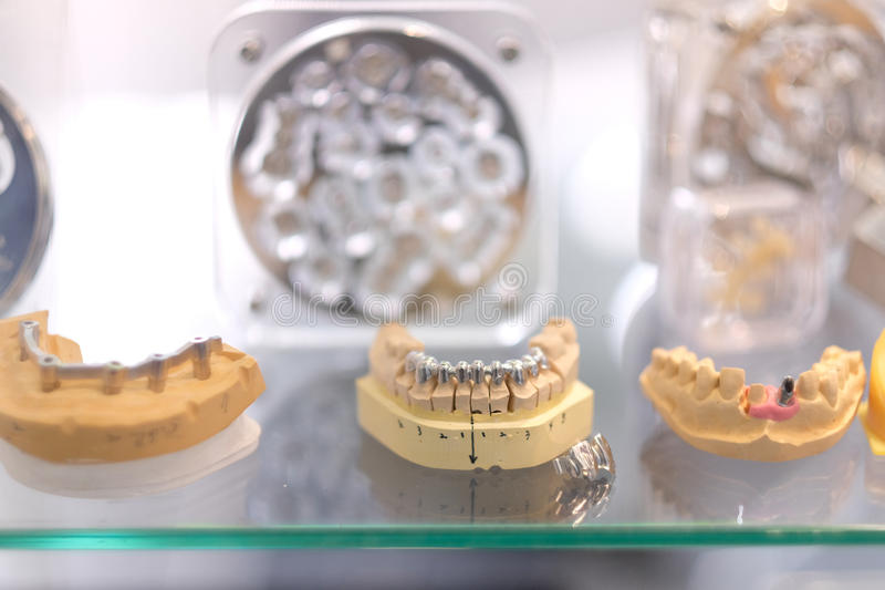 Crowns and implants royalty free stock photo