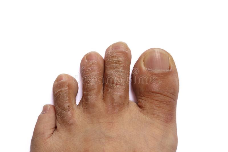 Crusty Hardened Skin On Toes Isolated On White. Toes on the left foot of a male subject with thick crusty hardened cracked skin due to fungal infection stock photography