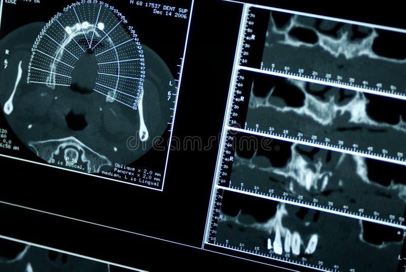 ct嘴造影扫描X线体层照相术 免版税库存照片