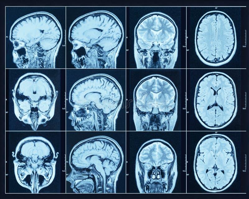 CT扫描的特写镜头与脑子的 科学和教育mri backg 免版税库存图片
