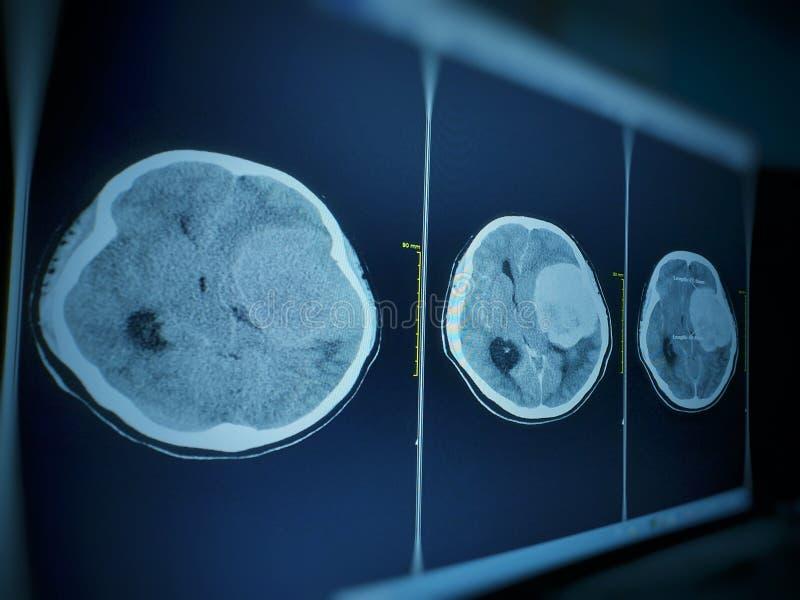 CT脑子印象七cm 与stong改进的额外轴向大量和对左大脑半球的许多作用 库存图片